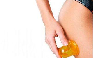 Баночный массаж от целлюлита — лучший способ избавиться от проблемы!