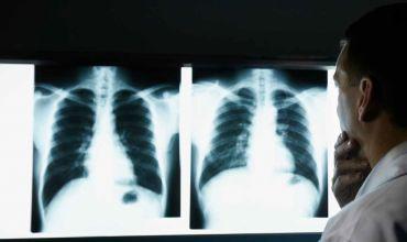 Рентгенография и флюорография легких